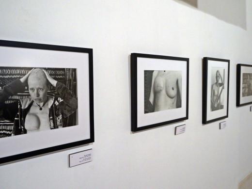 (Fotos) Cicatrices, dolor y esperanza en blanco y negro