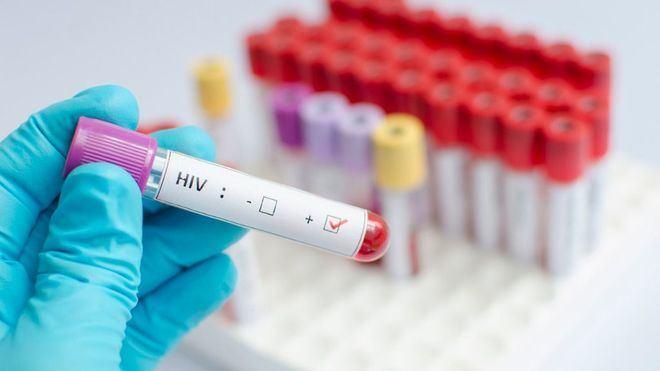 2.683 ciudadanos de Baleares conviven en la actualidad con el virus VIH.