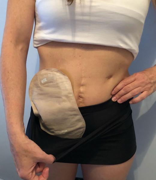 Más de 70.000 personas en nuestro país conviven con una bolsa por una ostomía