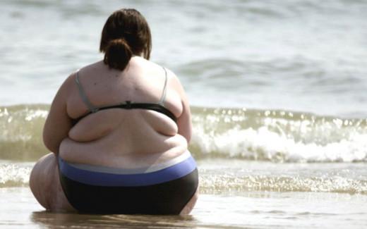 La obesidad constituye a día de hoy uno de los problemas de salud más importantes en el mundo desarrollado
