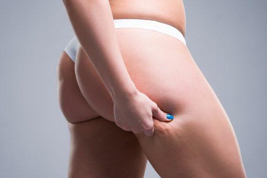 Las hormonas también parecen jugar un papel en la aparición de la celulitis.