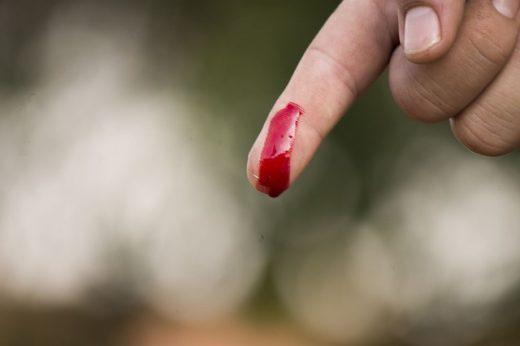 Una simple herida puede ser un grave problema