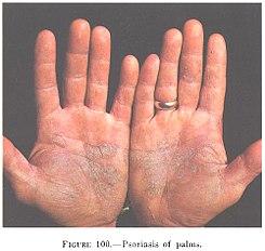 Quien tiene psoriasis padece inflamación de la piel